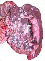 Single horn uterus